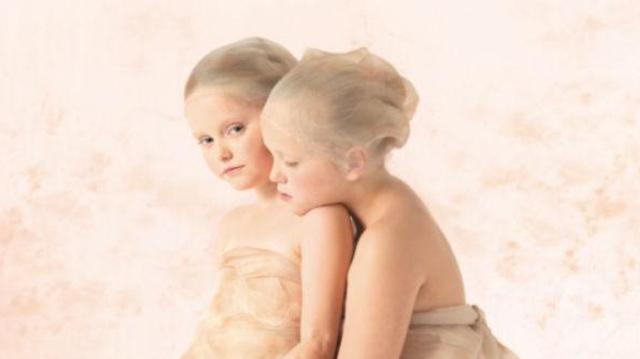 Méningite à méningocoques : les enfants survivants d'Anne Geddes