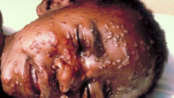 Enfant atteint de la variole (Crédit photo : CDC)