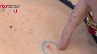 Cancers de la peau : profitez du dépistage gratuit!