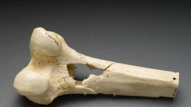 Bientôt une banque d'os artificiels grâce à une imprimante 3D?