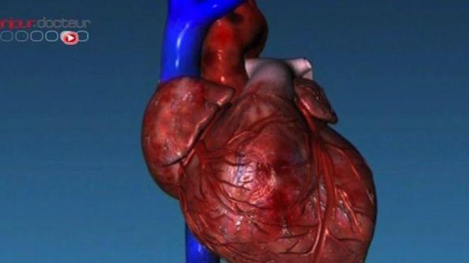 Maladies coronariennes : la mutation d'un gène protègerait certains patients