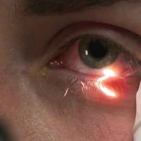 Conjonctivite, kératite, uvéite : attention les yeux!