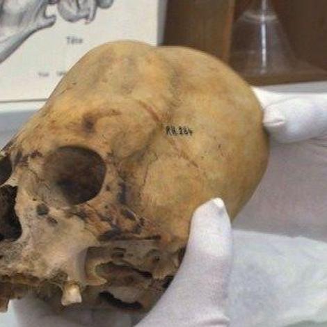 Les déformations du crâne des bébés