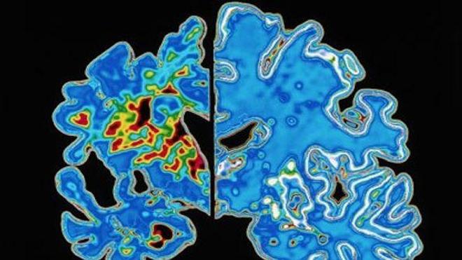 Alzheimer : un gène retarderait la maladie de 4 ans