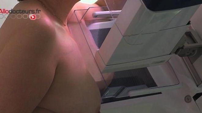 Cancer du sein : découverte d'un nouveau gène défectueux