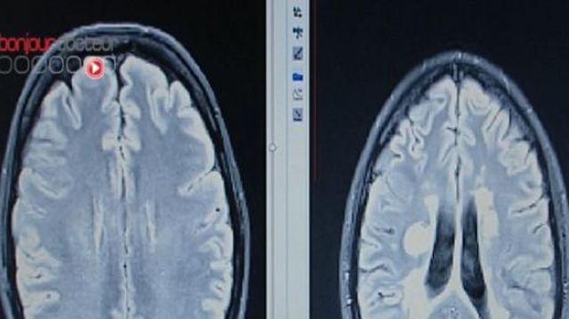 Sclérose en plaques : l'Etat condamné à verser 2,4 millions d'euros d'indemnités