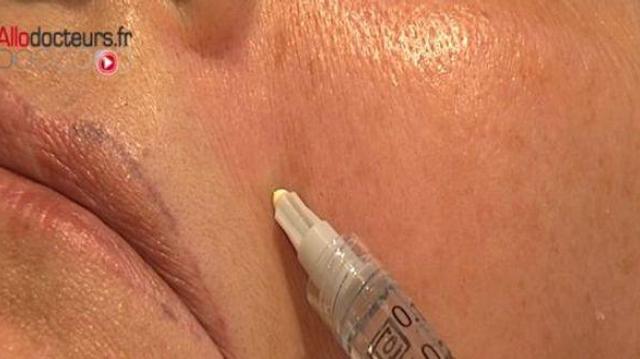 Du Botox® pour combattre le cancer de l'estomac?