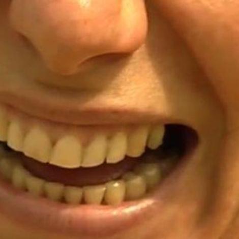 Ch@t : Vaincre la mauvaise haleine