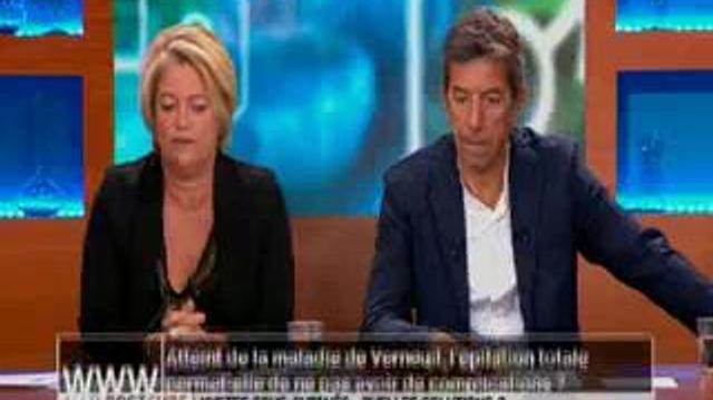 Maladie de Verneuil : l'épilation totale permet-elle d'éviter les complications ?