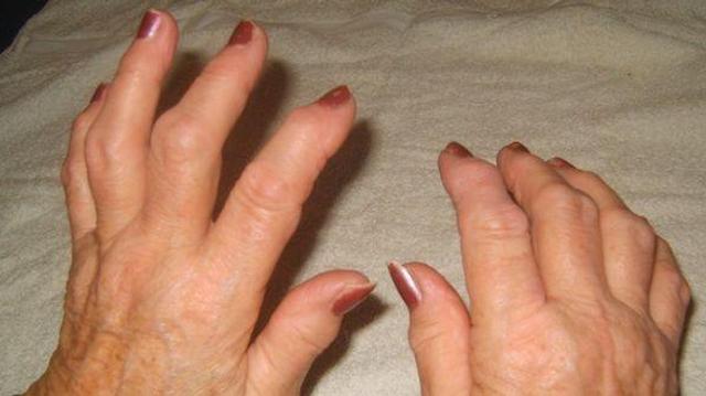 Polyarthrite rhumatoïde : quels traitements, quelle recherche ?