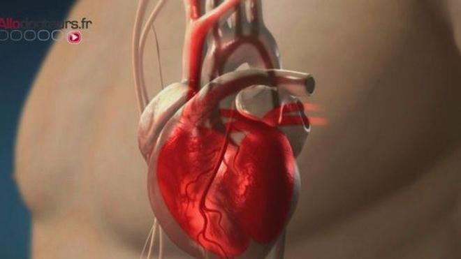 Un plan de lutte contre les maladies cardiovasculaires pour sauver des vies