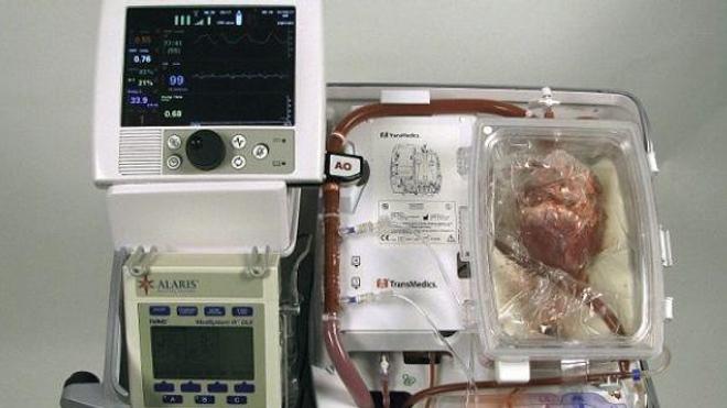 Le dispositif employé pour empêcher la dégradation des cœurs en attendant leur transplantation. (DR)