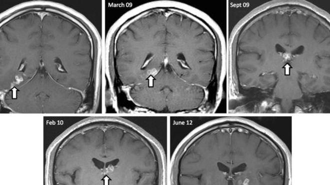 Cheminement de la larve dans le cerveau du patient au fil des ans. (Source : Genome Biology, doi:10.1186/s13059-014-0510-3)