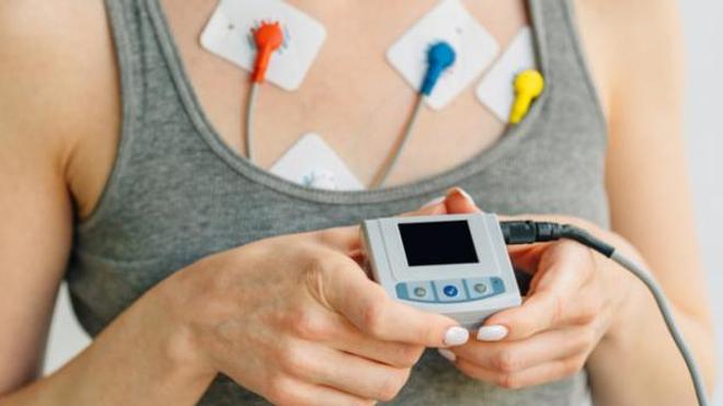 Quels sont les symptômes de l'arythmie cardiaque ?