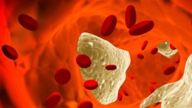 L'Europe autorise une nouvelle classe de médicaments anti-cholestérol