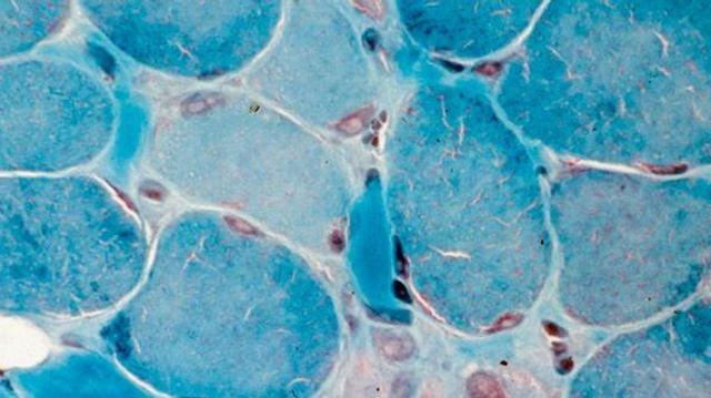 Myopathie de Duchenne : un pas en avant dans la prise en charge ?