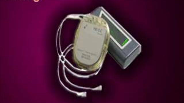 Un stimulateur nerveux contre la prise de poids