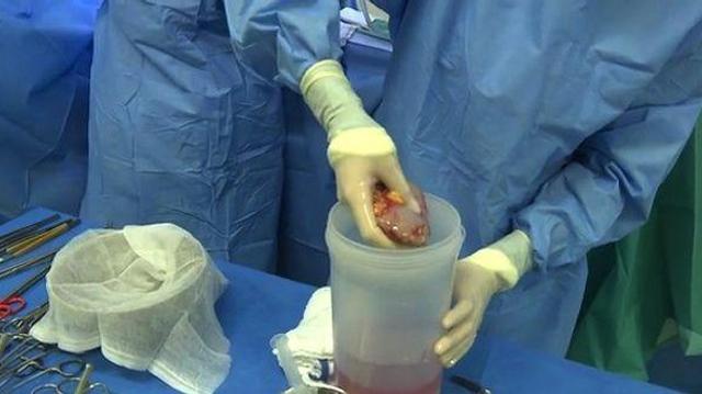 Greffe de rein intrafamiliale : une solution à la pénurie d'organes ?