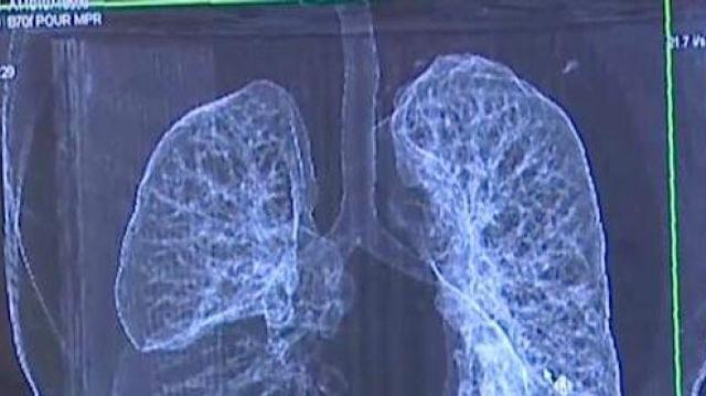 Le cancer du poumon plus meurtrier que le cancer du sein chez les Européennes en 2016