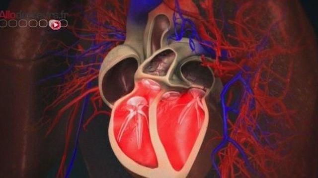 Vers un don de cellules cardiaques pour aider les victimes d'infarctus ?