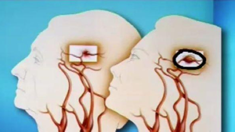 Ch@t : Les accidents vasculaires cérébraux