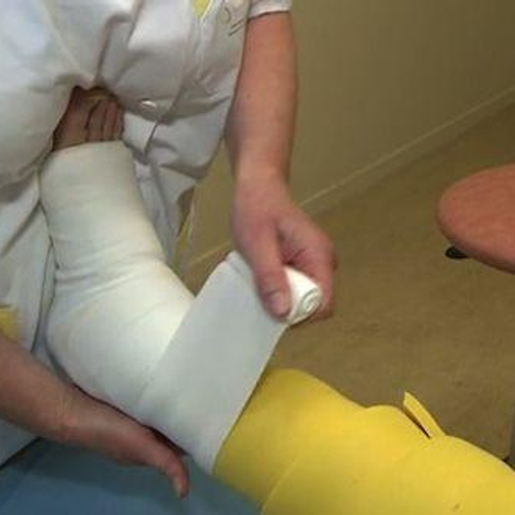 Syndrome des grosses jambes : quelle prise en charge ?