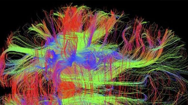 cc Zeynep M Saygin, Wellcome Images - Visualisation (IRM) des connexions neuronales dans un cerveau humain en bonne santé (2012)