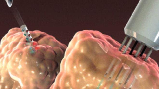 Evaluer le succès de la chimiothérapie in vivo, à même la tumeur