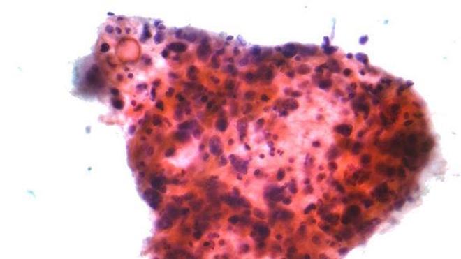Micrographie d'un carcinome à cellules squameuses, un type de cancer non à petites cellules. (cc by-sa Nephron)