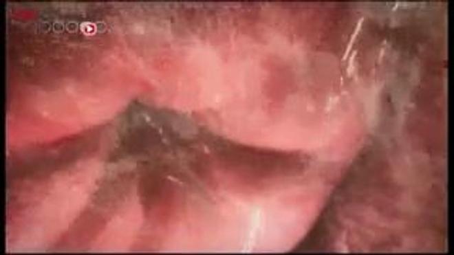 Vidéo : reportage diffusé le 10 mai 2015, à l'occasion de l'annonce des premiers résultats. Image d'illustration : des spermatozoïdes (DR).