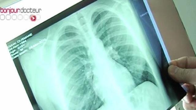 Quatre des cinq cas de tuberculose chez des CRS de Limoges démentis