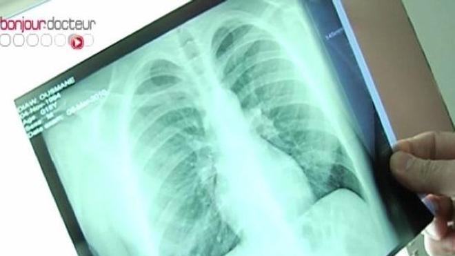 Radiographie des poumons d'un patient souffrant de tuberculose (image d'archives).
