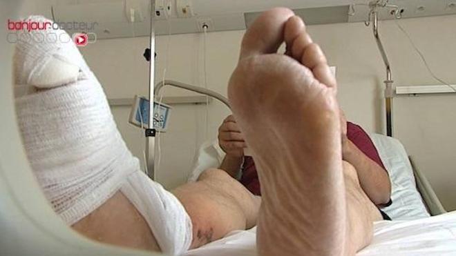 Diabète : comment prévenir les amputations du pied?