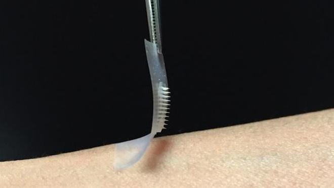 Le patch est recouvert d'une centaine d'aiguilles microscopiques contenant de l'insuline