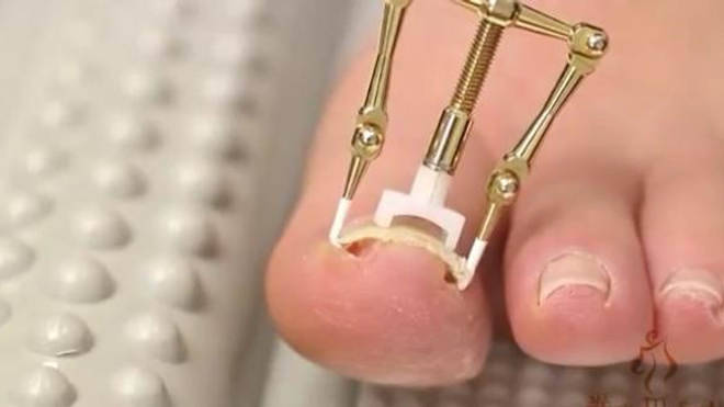 Le Makizume Robo permettrait de soigner les ongles incarnés en 30 minutes (Capture d'écran YouTube).