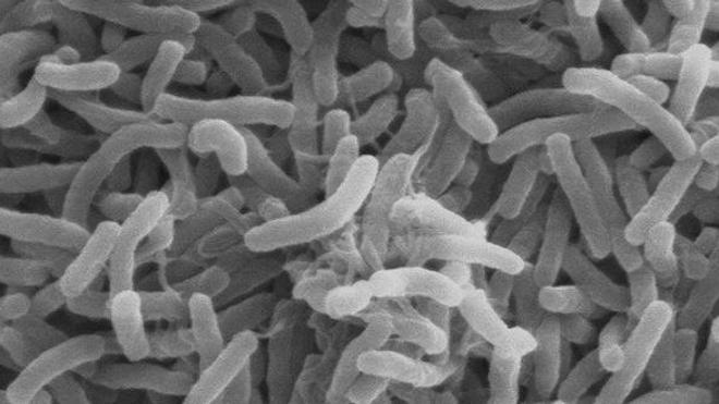 Cholera bacteria SEM - Wikimedia Commons
