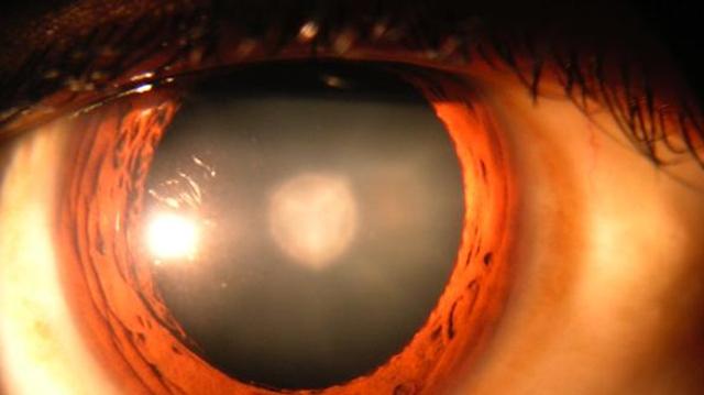 Une nouvelle stratégie pour traiter la cataracte infantile