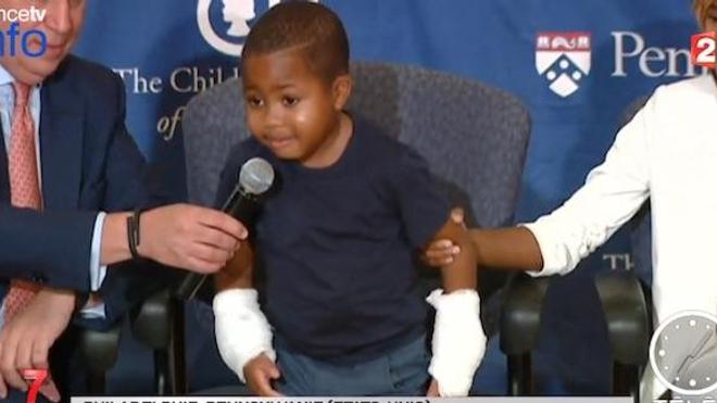 Zion Harvey est le premier enfant au monde à avoir reçu une greffe des deux mains.