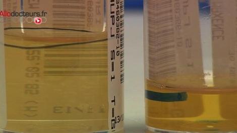 Infections urinaires : une protéine clé identifiée