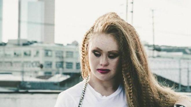 Madeline Stuart, 18 ans, modèle atteinte de trisomie 21