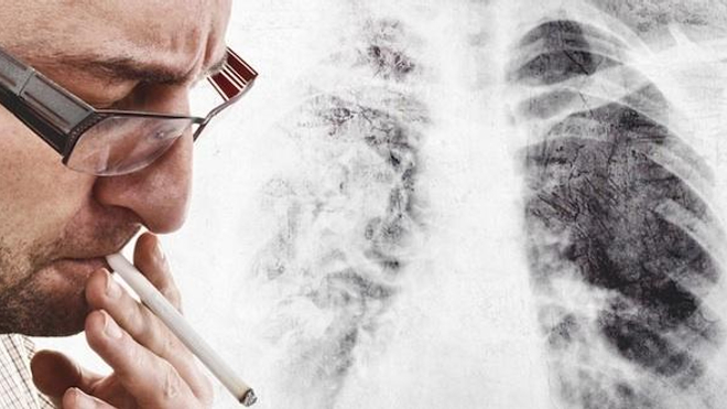BPCO : les fumeurs ne sont pas tous égaux