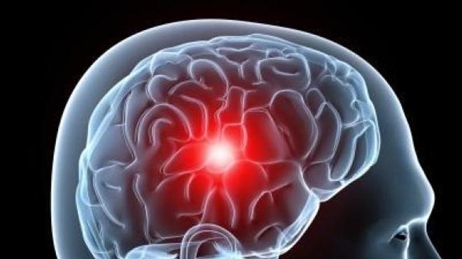 Le cerveau et l'AVC. Crédit Somedical