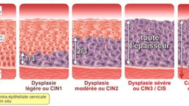 Quels sont les différents stades des lésions dues à des HPV ? (Image ©Papillomavirus.fr)