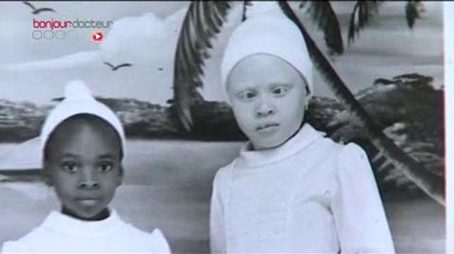 Albinisme : la peau en souffrance