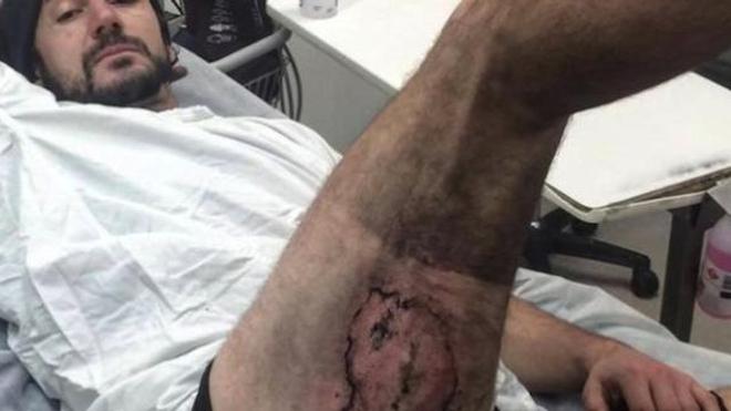 La batterie de son iPhone explose et lui brûle la jambe - Crédit photo : Gareth Clear via Storyful