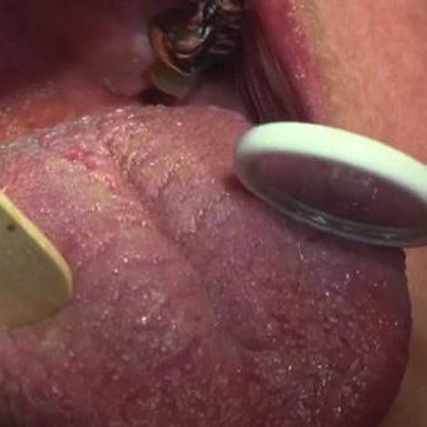 Pathologies de la bouche : quelles solutions ?