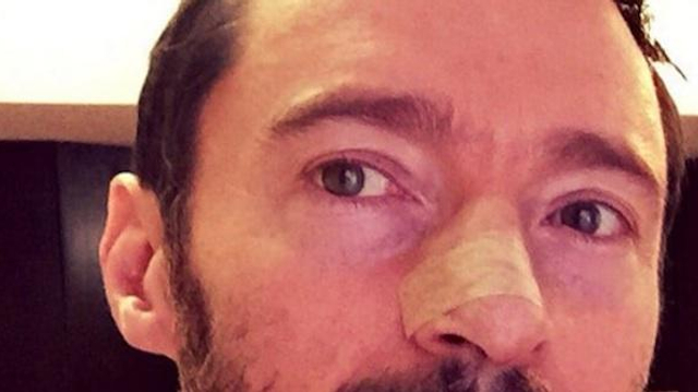 Hugh Jackman fait campagne contre le cancer de la peau