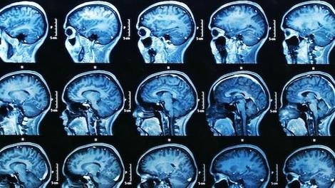 Des médicaments pour la ménopause ou l'endométriose augmentent le risque de tumeur cérébrale