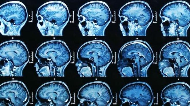Sclérose en plaques : la voix des associations