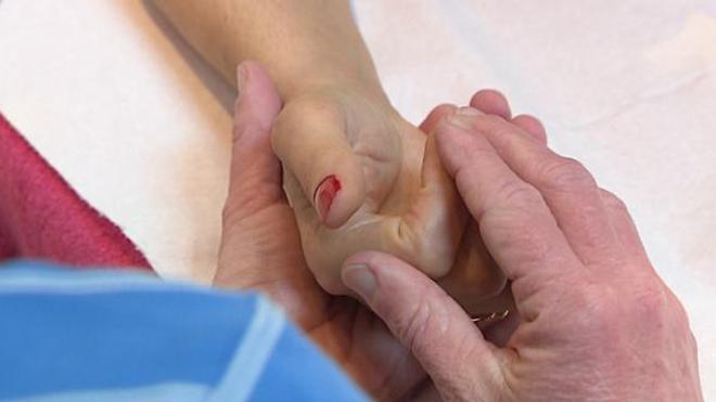 Algodystrophie, la douleur des organes mal irrigués